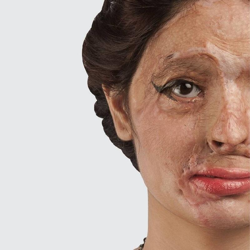 ريشما قريشي.. عارضة الموضة في نيويورك التي تشوه وجهها بالحمض