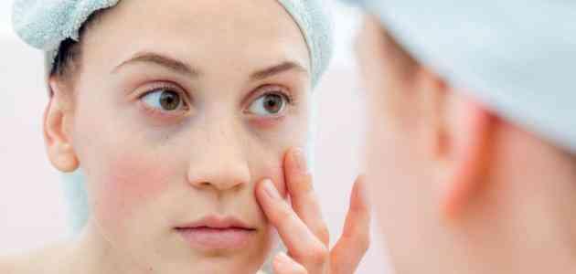 أسباب تورم الوجه وكيفية علاجه بخطوات منزلية بسيطة