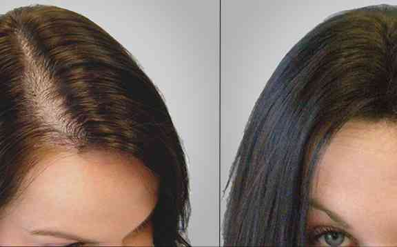 كل ما تريدين معرفته عن عملية زراعة الشعر